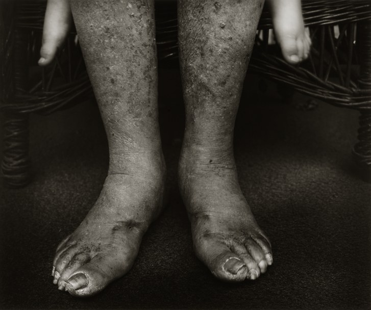 The Colour of Humanity by Sally Mann